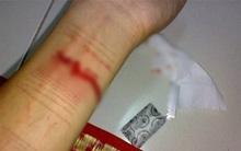 Không được đi du học, nữ sinh 21 tuổi dùng dao lam rạch tay, tự hủy hoại bản thân