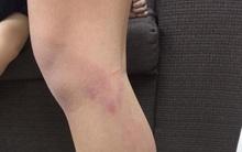 Hà Nội: Học sinh lớp 2 bị cô giáo đánh gãy thước, thâm tím hai chân do vào lớp muộn sau giờ ra chơi