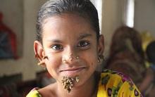 """Khuôn mặt biến dạng, mọc rễ của cô bé 10 tuổi do căn bệnh """"người cây"""" quái ác"""