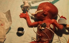 Chuẩn bị tinh thần chôn cất đứa con nặng 0.3kg, 13 năm sau người mẹ trẻ òa khóc khi con vẫn còn sống