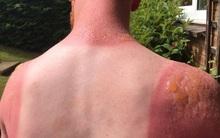 Nắng nóng kinh hoàng, chàng trai bị bỏng rộp nghiêm trọng khi làm việc ngoài trời suốt 7 tiếng