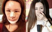 """Đòi xinh đẹp như Angela Baby, mẫu nữ Hồng Kông trả giá đắt với chiếc mũi phẫu thuật thẩm mỹ... """"lệch"""""""