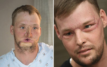 """Người đàn ông biến thành """"quái nhân"""" vì tai nạn súng, sau khi cấy ghép mặt, anh trở nên đẹp trai bất ngờ"""
