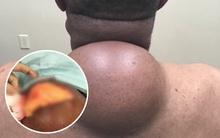 Bác sĩ mất 1 tiếng mới nặn được hết nhân của nốt mụn to bằng quả bóng sau lưng
