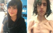 Thiếu nữ 19 tuổi biến thành bộ xương khô di động vì bị liệt dạ dày