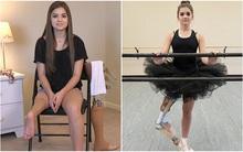 Bị u xương ác tính phải cắt bỏ phần chân dưới đầu gối, cô bé 14 tuổi vẫn làm được điều kỳ diệu khiến nhiều người khâm phục