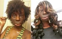 """Bị gọi là """"quái vật"""" sau tai nạn, cô gái Mỹ nhất quyết không chịu phẫu thuật thẩm mỹ để xinh đẹp hơn"""