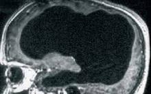 """Người đàn ông """"không có não"""" mà vẫn sống, trở thành lời thách thức đối với toàn bộ giới khoa học"""
