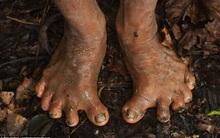 Bộ tộc người 6 ngón chân xòe kỳ lạ ở Mexico