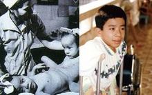 Người Việt đầu tiên bị dính liền cơ thể trở thành giáo sư thỉnh giảng tại Nhật Bản