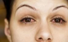 Đây chính là những lý do khiến mắt đỏ khi giao mùa và cách xử lý đúng đắn nhất