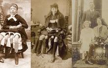 Những gánh xiếc lưu động và 9 nhân vật kỳ lạ nhất trong lịch sử