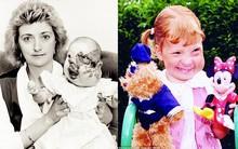 Sinh ra với gương mặt biến dạng và bị người đời xa lánh, phép màu đã khiến cuộc đời cô gái thay đổi sau 25 năm
