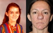 Gương mặt cô gái biến đổi đáng sợ từ tuổi dậy thì, cho đến khi sinh con thứ 2 thì không còn ai nhận ra