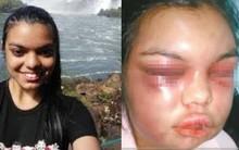 Người phụ nữ bị chồng đấm mỗi khi có ai đó like ảnh của cô trên facebook