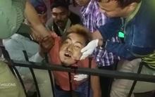 Tai nạn giao thông nghiêm trọng, nam thanh niên bị rào chắn đâm xuyên qua miệng