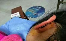 Bé gái lớp 2 bị cô giáo véo đứt tai vì chưa làm bài tập