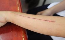 Sự thật nữ sinh lớp 10 bị bạn dùng lưỡi lam rạch tay ở Sài Gòn