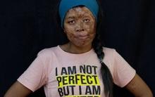 Chùm ảnh: Những gương mặt biến dạng đến ám ảnh của các nạn nhân bị tạt axit kinh hoàng