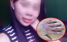 Niềm vui của cô gái trẻ có bàn tay được tái sinh sau 2 năm đau đớn