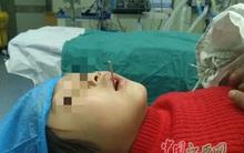 Đừng chủ quan: Bé gái ăn xúc xích bị que xiên đâm xuyên cổ họng