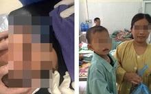 Mẹ lơ là không để ý, bé trai 3 tuổi bị kéo đâm xuyên thấu xương thái dương