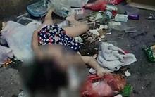 Giúp mẹ xuống nhà lấy đồ, bé gái 5 tuổi bị người lạ đánh hôn mê 4 ngày chưa tỉnh
