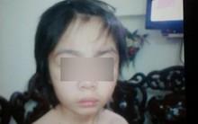 """Hà Nội: Bé trai 10 tuổi """"tháo chạy"""" khỏi bố và mẹ kế, tìm về ông bà nội vì bị bạo hành?"""