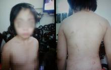Hà Nội: Tạm giữ hình sự người cha đánh đập, hành hung con trai 10 tuổi gãy xương sườn, rạn sọ não