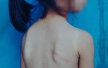 Nghệ An: Học sinh lớp 1 bị cô giáo đánh thâm tím lưng và chân vì không làm được bài