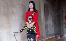 """Cái Tết trọn vẹn đầu tiên của cậu bé 6 tuổi có khuôn mặt tựa """"người rừng"""" tại Yên Bái"""