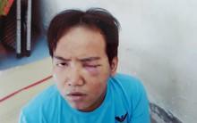 Vụ bảo vệ tổ dân phố sát hại bé trai 6 tuổi ở Sài Gòn: Kẻ gây án bị tâm thần phân liệt thể hoang tưởng