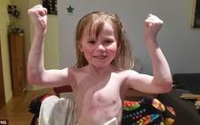 Căn bệnh kỳ lạ khiến làn da mỏng manh hơn cả tờ giấy nhưng đã có đến 37.000 trẻ em mắc bệnh ở Anh và Mỹ
