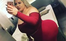 Người phụ nữ gây sốc với vòng 3 khổng lồ dự định tiếp tục độn mông mặc cho lời cảnh báo sức khỏe từ bác sĩ