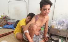 Mẹ bỏ đi lấy chồng, bé trai 12 tuổi nghỉ học vào bệnh viện chăm cha khờ bị tai nạn mà không có tiền cứu chữa