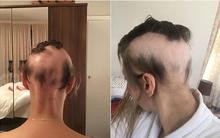 Chị em làm đám cưới đừng lo lắng quá, người phụ nữ này đã rụng sạch tóc vì căng thẳng chuẩn bị cho ngày trọng đại