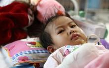 Xót xa bé gái 3 tuổi phải phẫu thuật tháo khớp tứ chi sau cơn sốt nhiễm khuẩn huyết