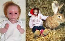 Cuộc đời của cô bé nhỏ nhất thế giới: Bác sĩ nói rằng em chỉ sống được 1 năm, nhưng nghị lực sống đã chiến thắng tất cả