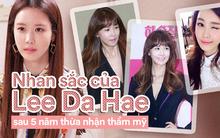 """Sau 5 năm thừa nhận """"dao kéo"""", nhan sắc Lee Da Hae khiến nhiều người không khỏi bất ngờ"""