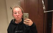Thoa kem chống nắng, đeo kính râm nhưng cô gái này bị cháy nắng nghiêm trọng và đây là nguyên nhân