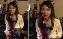 Malaysia: Bị tấn công khi đang bắt taxi, cô gái bình tĩnh đi báo công an với con dao cắm giữa mặt