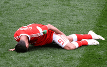 """""""Messi của nước Nga"""" nguy cơ chia tay World Cup 2018 ngay sau trận khai màn"""