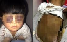 Trung Quốc: Bé gái 4 tuổi bị bố đánh đập hành hạ, xích trong nhà vệ sinh tối tăm 16 tiếng 1 ngày khiến dư luận phẫn nộ
