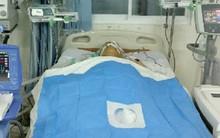 """Bác sĩ Sài Gòn ròng rã đưa người đàn ông 3 lần ngưng tim từ cõi chết trở về bằng kỹ thuật """"gấu ngủ đông"""""""
