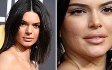 Dù Kendall Jenner lộng lẫy nhất nhì thảm đỏ Quả Cầu Vàng nhưng làn da mụn sần sùi của cô mới là tâm điểm bàn tán