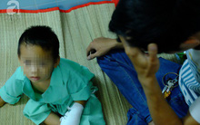 Tai nạn đau lòng: Bé trai 3 tuổi đứt lìa ba ngón tay vì nghịch máy xay bột làm nhang