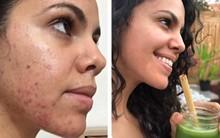 Ngắm kết quả sau khi uống nước ép cần tây của các cô gái trên thế giới: làn da thay đổi nhiều đến mức khó tin