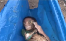 Hình ảnh gây sốc: Cậu bé 11 tuổi chết vì bị cá Piranha ăn thịt