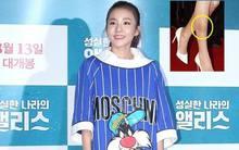 Dara (2NE1) bị soi đôi chân tì vết, đọ sắc cùng Moon Geun Young