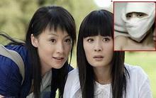 Ngọc nữ Trung Quốc tung ảnh phẫu thuật gọt mặt nhọn hoắt